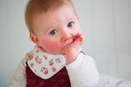 小孩子脸蛋总是红的是什么原因 除了干燥过敏还有这些因素