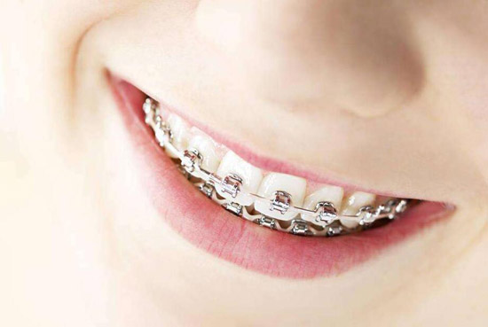 戴牙套能接吻吗有什么影响 戴牙套接吻是一种什么样的体验