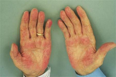 肝硬化早期症状