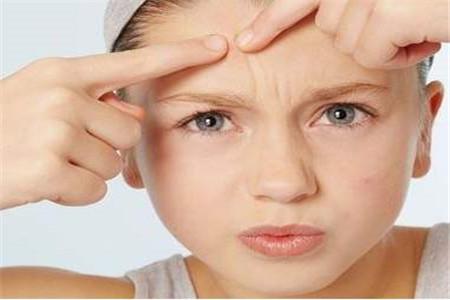 额头长痘是什么原因