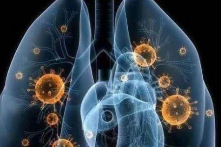 新型冠状病毒肺炎