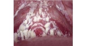 霉菌性阴炎症状 霉菌性阴炎症状(图片)