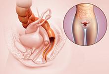 女性阴道松弛会带来哪些危害 阴道松弛会引发不同的妇科病
